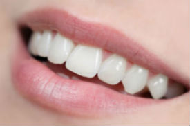 White Fillings |  | Metro Smiles | Orlando, FL Dentist
