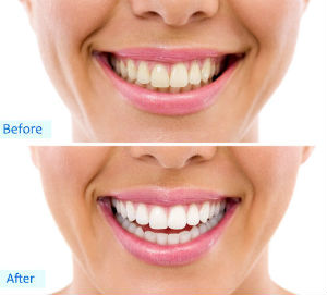 Teeth Whitening | Manoj Patel | Orlando FL Dentist