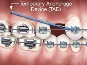Orlando Orthondotist | temprary Anchorage Device