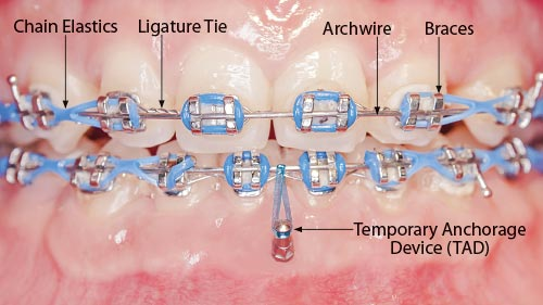 Orlando Orthodontist | Temporary Anchorage Device