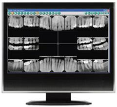 Digital Dental X-Rays | Dr. Manoj Patel | Orlando, FL Dentist